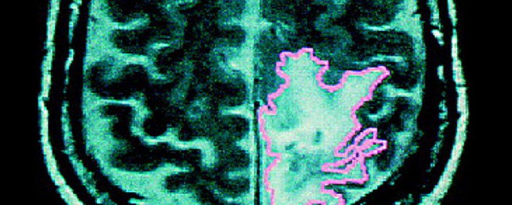 El cannabis mejoró la supervivencia de pacientes con cáncer cerebral agresivo en estudios clínicos controlados