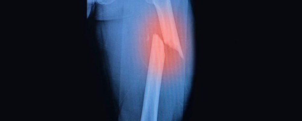 ¿Puede el cannabis ayudar a sanar huesos fracturados?